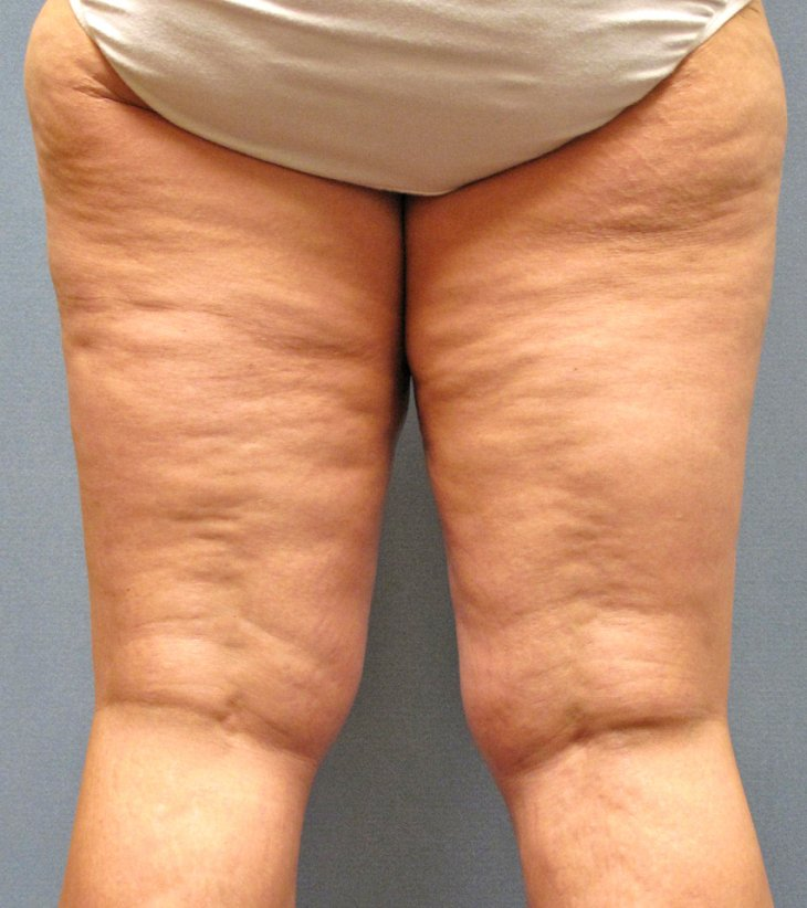 cellulite dclinic Find essays and research papers on skin at operainccom we've helped millions of students since 1999 join the world's largest study community.